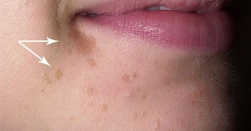 Flat Warts - Causes, treatment and Prevention | Hickey ...