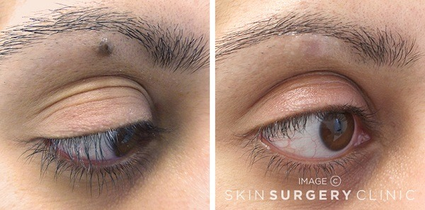 Laser Mole Removal treatment before and after