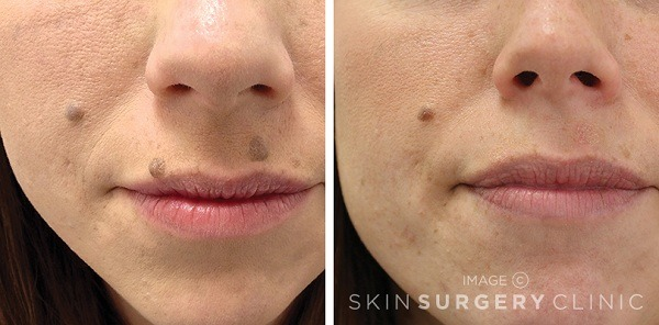 mole removal before and after on face