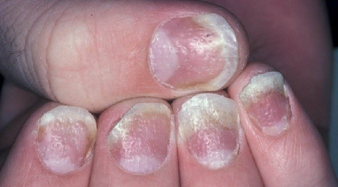 Nail psoriasis home remedies