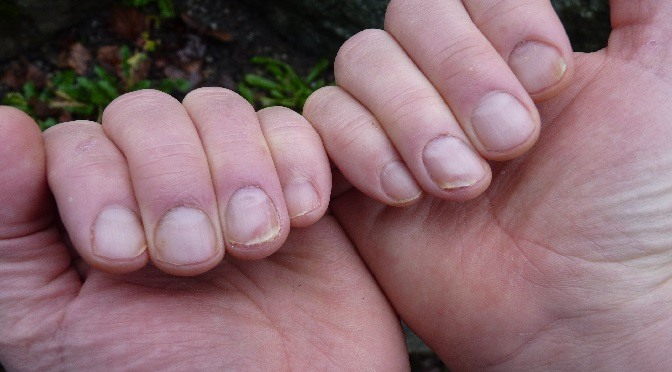 Cаuѕеѕ and cure of Nail Psoriasis