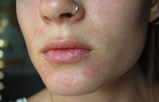 Perioral Dermatitis Treatment Causes And Symptoms