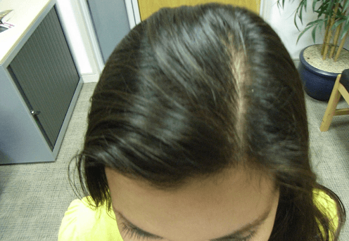 Can Dandruff Cause Hair Loss foto