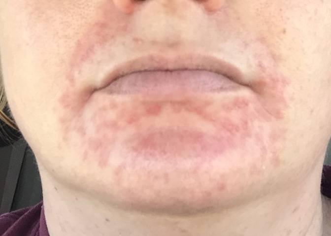 acne-around-mouth