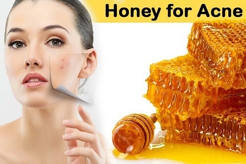 how to use honey for blind acne under the skin