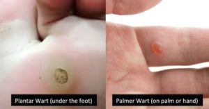 Types of warts: palmer and planters wart