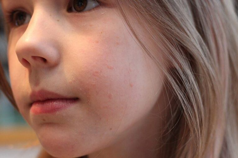 warts on face home remedy